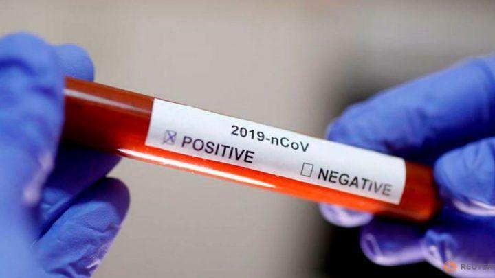 2020040316091144007_file-photo-test-tube-with-corona-virus.jpg